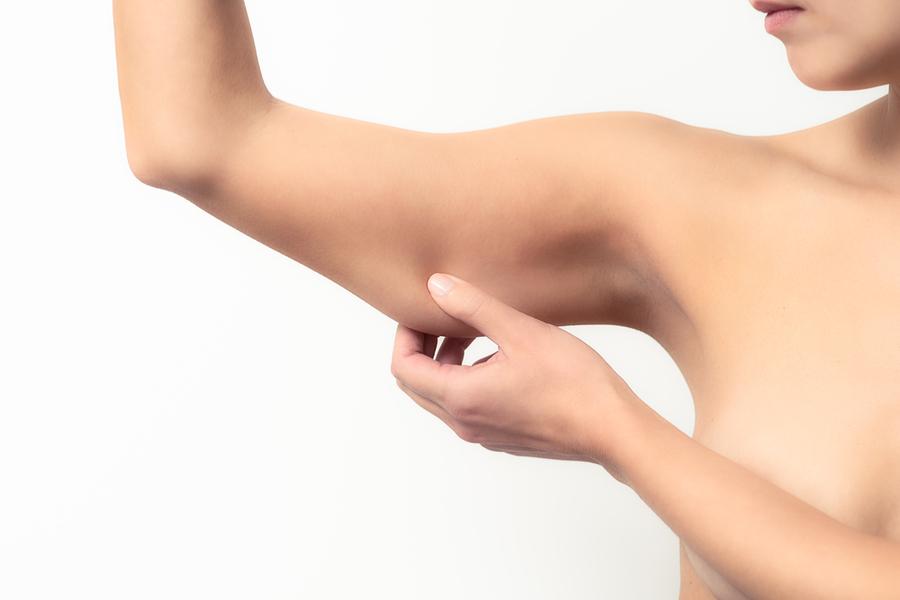 Reafirmación de brazos